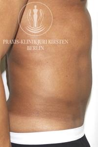 Kryolipolyse Bauch Mann BC nachher Praxis Dr Kirsten.JPG