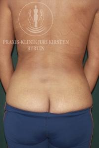 Kryolipolyse Ruecken MM nachher Praxis Dr Juri Kirsten Berlin