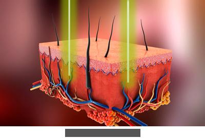 Blutschwaemmchen entfernen mit Laser Praxis Juri Kirsten Berlin Haut waehrend