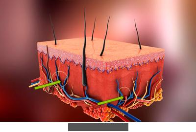 Blutschwaemmchen entfernen mit Laser Praxis Juri Kirsten in Berlin Schoeneberg Haut nachher