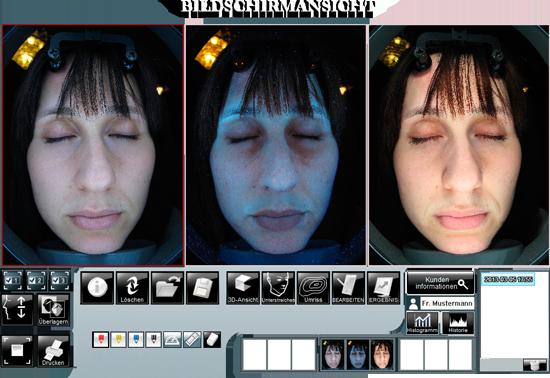 Bildschirmansicht Hautanalyse Praxis Doktor Kirsten in Berlin Schoeneberg