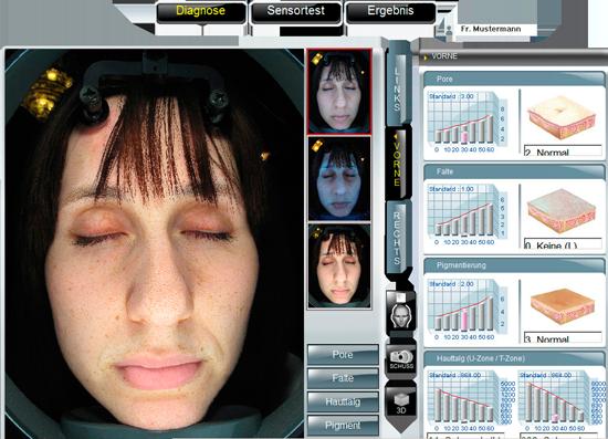 Diagnose des Hautzustandes bei Hautanalyse in der Praxis Doktor Kirsten in Berlin