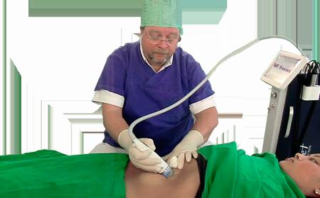 Behandlung von Schwangerschaftsstreifen mit Microneedling RF Secret Doktor Juri Kirsten in Berlin Schoeneberg