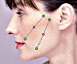 Wangen, naso-labialen Falten. Silhoutte Soft Fadenlifting in der Praxis Dr. Juri Kirsten in Berlin