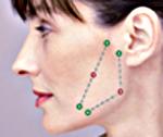 Hamsterbäckchen. Silhoutte Soft Fadenlifting in der Praxis Dr. Juri Kirsten in Berlin