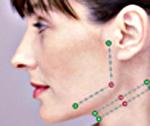 Fadenlifting am Hals. Silhoutte Soft Fadenlifting in der Praxis Dr. Juri Kirsten in Berlin