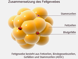 Fettzelle-Fettabsaugung-in-der-Praxisklinik-Dr-Kirsten-in-Berlin