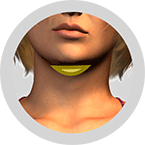 Hals bei Doppelkinn-mit-Straffungseffekt-der-Haut-ohne-Narben-Fettabsaugung-Berlin-Praxisklinik-Dr-Kirsten