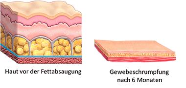 Fettabsaugung Berlin vorher nachher