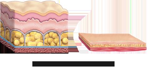 Cilt önce ve- sonrasi Yag aldirma/Liposuction Uygulama muyane Doktor Kirsten Berlinde