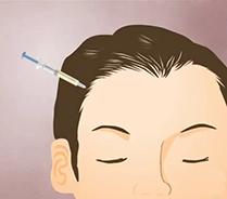 Injektion Haare. Haarausfall und Plasmalifting ( Vampir Lifting )