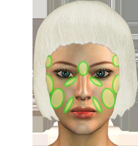 Faltenunterspritzung mit Hyaluronsäure Hamburg Gesicht