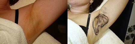 Behandlung der axillaren Schweißdrüsen in den Achselhöhlen