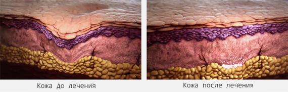 Liquid Lifting в клинике доктора Ю.Кирстена в Берлине - кожа до и после лечения