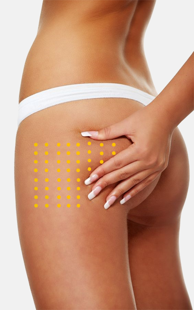 Mesotherapie - Cellulite Behandlung in der Praxis Dr Juri Kirsten in Berlin