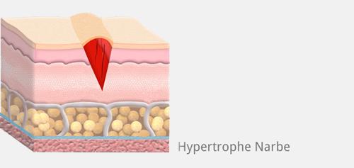 Narbe hypertrophisch