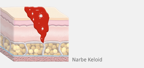 Narbe keloid