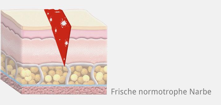 Narbe normotrophisch