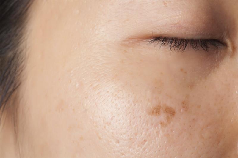 Pigmentstoerung/ Lentigo solaris Gesicht