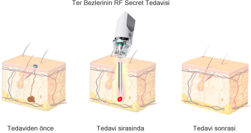Hiperhidrozun radio dalgali-Termo terapisi (RFTT) ile tedavisi bizim ugulama muyanede Juri Kirsten Berlinde