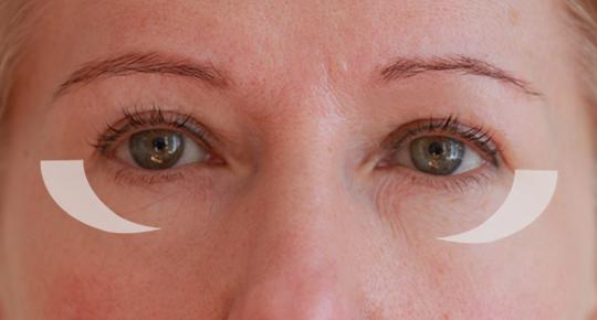Gözyasi cuvali aldirmak