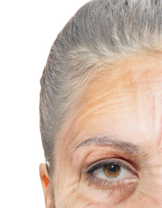 Das obere Gesichtsdrittel umfasst Stirn, Schlaefen und Augenbrauen, Facelifting in Berlin