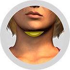 Hals-bei-Doppelkinn-mit-Straffungseffekt-der-Haut-ohne-Narben-Fettabsaugung-Berlin-Praxisklinik-Dr-Kirsten