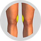 Knie-Formung-Fettabsaugung-berlin-Praxisklinik-Dr-Kirsten