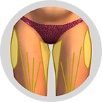 Oberschenkelinnenseiten-und-an-den-Oberschenkel-vorderen-Seiten-Fettabsaugung-Berlin-Praxisklinik-Dr-Kirsten