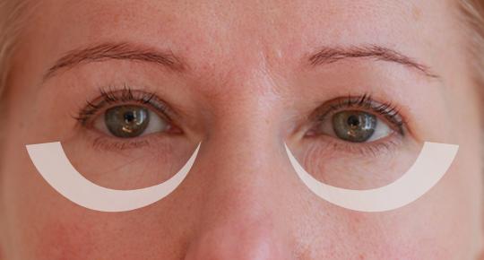 Augenringe-entfernen-in-der-privaten-Praxisklinik-Doktor-Juri-Kirsten-in-Berlin.