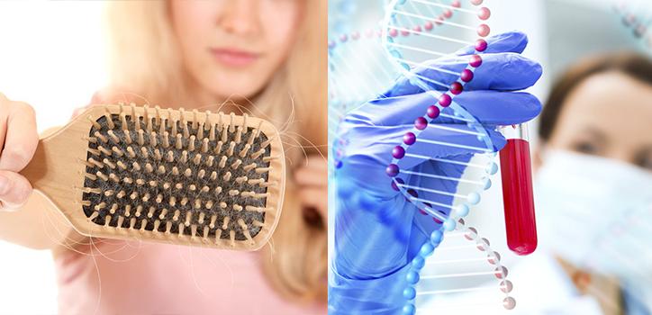 prp-genen-haarausfall-berlin