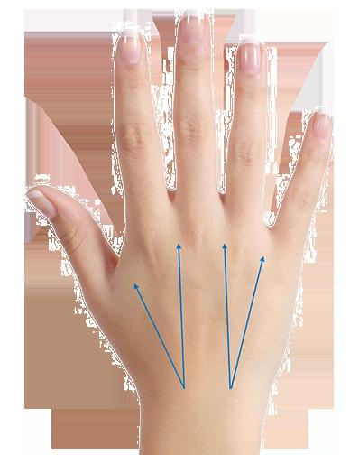Hand-Aufpolsterung-mit-Hyaluronsäure-berlin