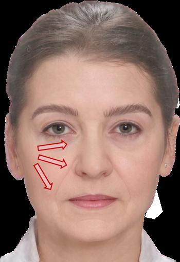 Absacken-des-Gesichtes-Wangenauffuellen-in-Praxis-Dr-Juri-Kirsten-in-Berlin