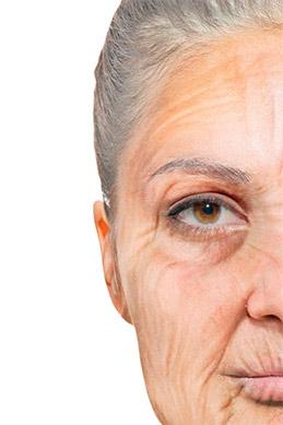 Gesichtalterung-Mittelgesicht-Facelifting-in-Berlin-Facelift-Facelift-in-Berlin-Praxis-Klinik-dr
