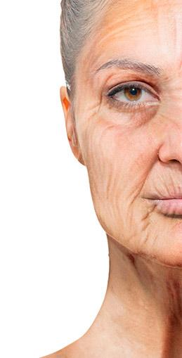 Gesichtalterung-Unteres-Gesicht-und-Hals-Facelifting-in-Berlin-Facelift-Faltenbehandlung-Praxis-Klinik-dr-Kirsten-1