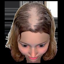Haarausfall-bei-Frauen-stufe-3