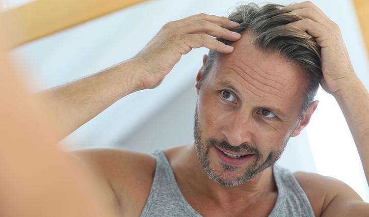 Haarausfall bei Männer / Vampire Lifting (PRP) gegen Haarausfall