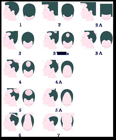 Haarausfall-bei-Männern