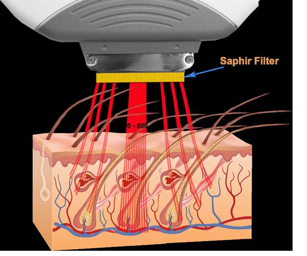 Funktionsprinzip-von-Laserhaarentfernung-mit-IPL-Lampe-mit-Saphirfilter