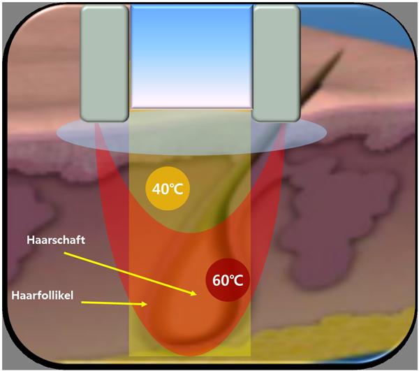 Laser-Haarentfernung-mit-Radfifrequenz-Technologie