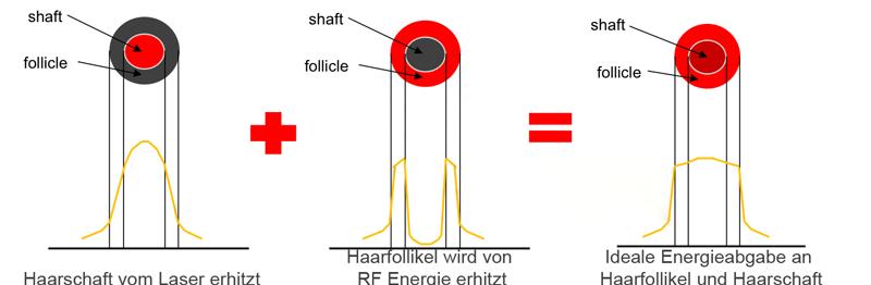 Laserhaarentfernung-Schema