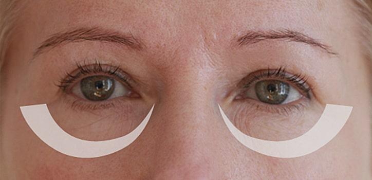 Augenringe-Entfernen in berlin