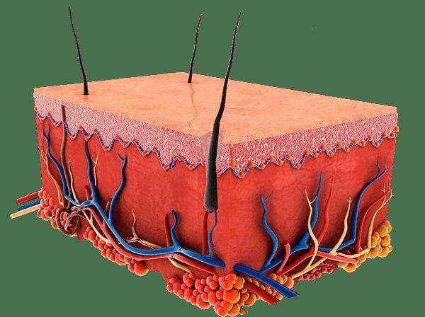 Carbon Peeling Haut und Poren nachher