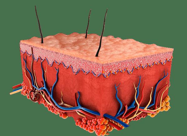 Carbon Peeling Haut und Poren vorher