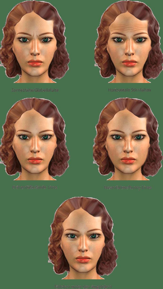 Botoxbehandlungen in der Praxis von Juri Kirsten in Berlin