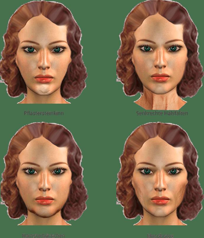 Botoxbehandlungen in der Praxis von Juri Kirsten Berlin