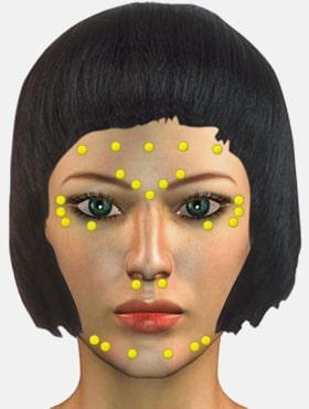 Лицо с зонами инъекций ботоксом в частной клинике доктора Кирстена в Берлине