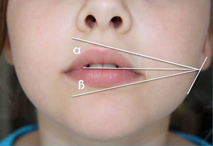 Ideale Lippen mit HA Spritze für idealen Winkel