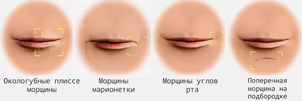 разные формы губ - перед инъекцией гиалуроновой кислотой