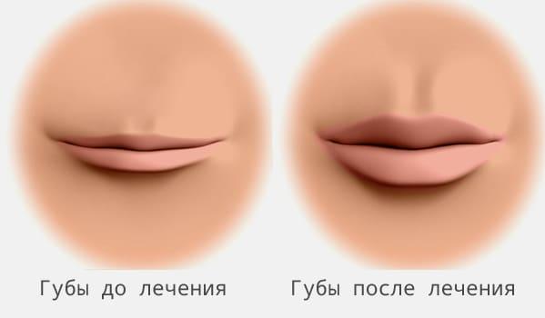 пример губ до и после процедуры гиалуроновой кислотой